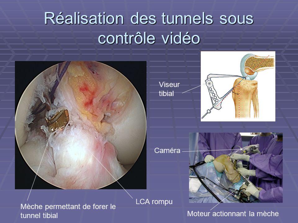 Réalisation des tunnels sous contrôle vidéo Viseur tibial Mèche permettant de forer le tunnel tibial LCA rompu Caméra Moteur actionnant la mèche