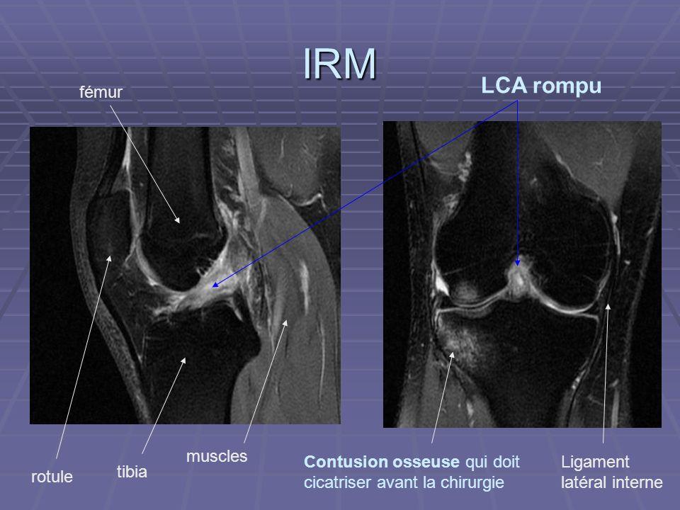 IRM Contusion osseuse qui doit cicatriser avant la chirurgie LCA rompu fémur tibia rotule Ligament latéral interne muscles
