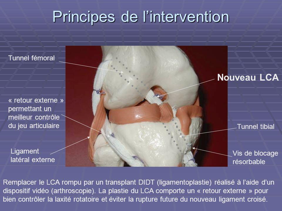 Principes de lintervention Remplacer le LCA rompu par un transplant DIDT (ligamentoplastie) réalisé à laide dun dispositif vidéo (arthroscopie). La pl
