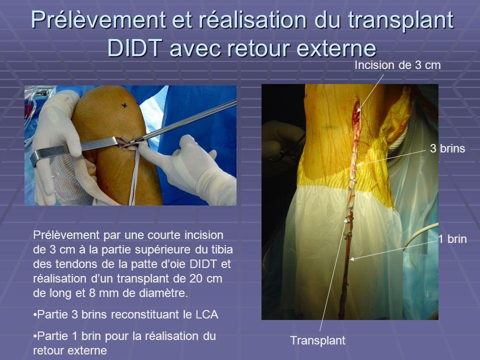 Prélèvement et réalisation du transplant DIDT avec retour externe Prélèvement par une courte incision de 3 cm à la partie supérieure du tibia des tend