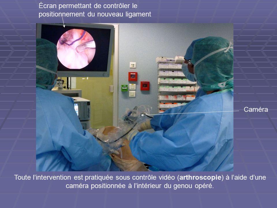 Écran permettant de contrôler le positionnement du nouveau ligament Toute lintervention est pratiquée sous contrôle vidéo (arthroscopie) à laide dune
