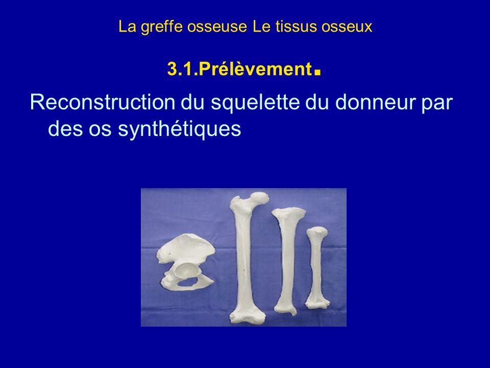 La greffe osseuse Le tissus osseux 3.1.Prélèvement. Reconstruction du squelette du donneur par des os synthétiques