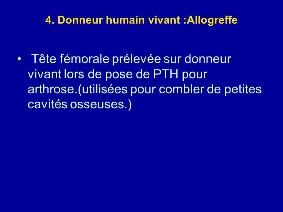 4. Donneur humain vivant :Allogreffe Tête fémorale prélevée sur donneur vivant lors de pose de PTH pour arthrose.(utilisées pour combler de petites ca