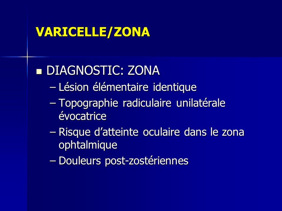 VARICELLE/ZONA DIAGNOSTIC: ZONA DIAGNOSTIC: ZONA –Lésion élémentaire identique –Topographie radiculaire unilatérale évocatrice –Risque datteinte ocula