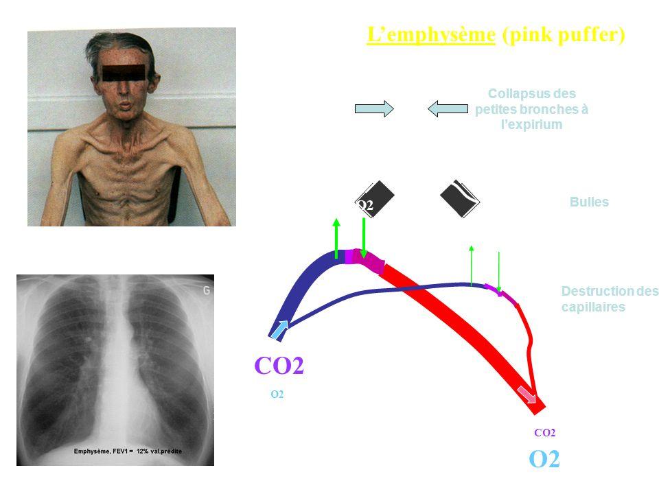 Lemphysème (pink puffer) Destruction des capillaires Collapsus des petites bronches à lexpirium Bulles CO2 O2 pO2 75 mmHg pCO2 40 mmHg SpO2 92 % CO2 O