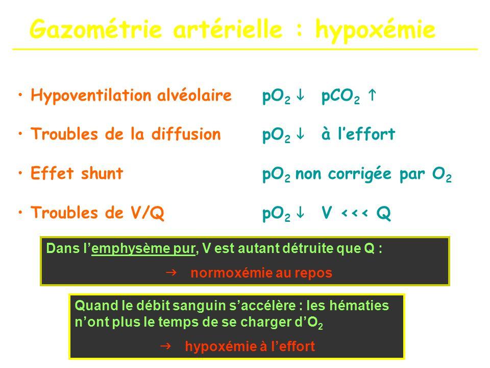 Gazométrie artérielle : hypoxémie Hypoventilation alvéolairepO 2 pCO 2 Troubles de la diffusionpO 2 à leffort Effet shuntpO 2 non corrigée par O 2 Tro