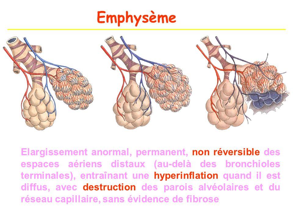 Emphysème Elargissement anormal, permanent, non réversible des espaces aériens distaux (au-delà des bronchioles terminales), entraînant une hyperinfla