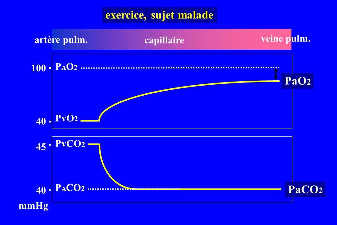 artère pulm. capillaire veine pulm. 40 100 PvO 2 45 40 PvCO 2 mmHg PaO 2 PaCO 2 exercice, sujet malade PAO2PAO2 P A CO 2