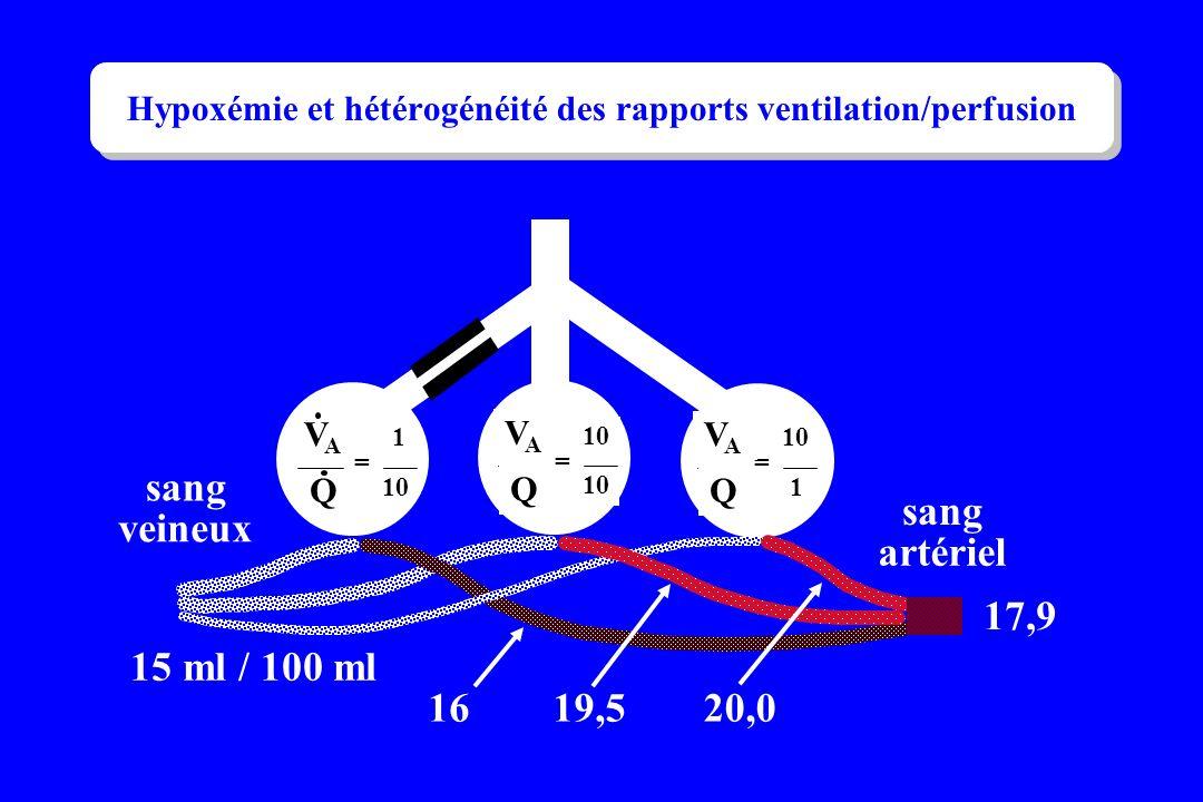 sang veineux sang artériel 15 ml / 100 ml 1619,520,0 17,9 = 1 10 VAVA Q = VAVA Q = 1 VAVA Q Hypoxémie et hétérogénéité des rapports ventilation/perfus