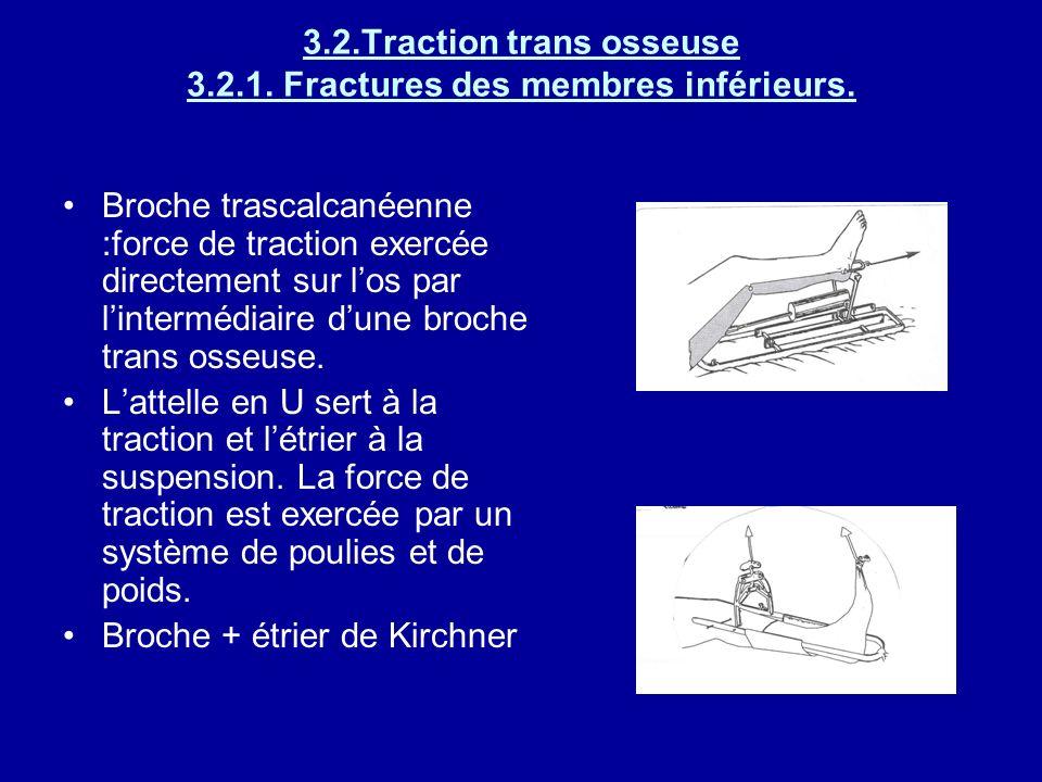 Traction-suspension des membres inférieurs