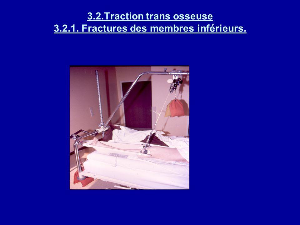3.2.Traction trans osseuse 3.2.1. Fractures des membres inférieurs. Broche trascalcanéenne :force de traction exercée directement sur los par lintermé