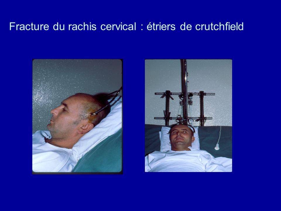 3.2.Traction trans osseuse 3.2.2. Fracture du membre supérieur. Bras et coude en flexion à 90° pour éviter lœdème de la main
