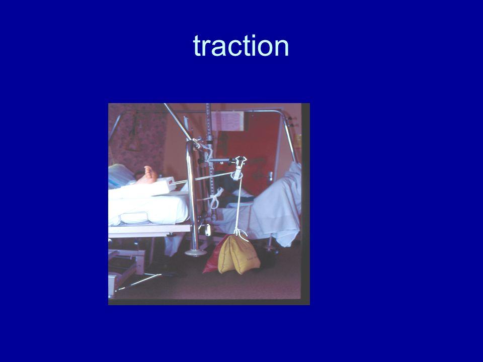 4. Soins relatifs à la traction Installation et efficacité de la traction : 4.1.1. Soins pour toute traction : patient en décubitus strict jusquà 6 se