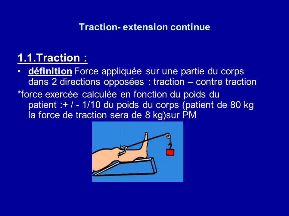 Traction- extension continue 1.Définitions. thérapeutique qui permet la réduction et la contention dune fracture. mise sous A.L. ou A.G. METHODE IMPOS