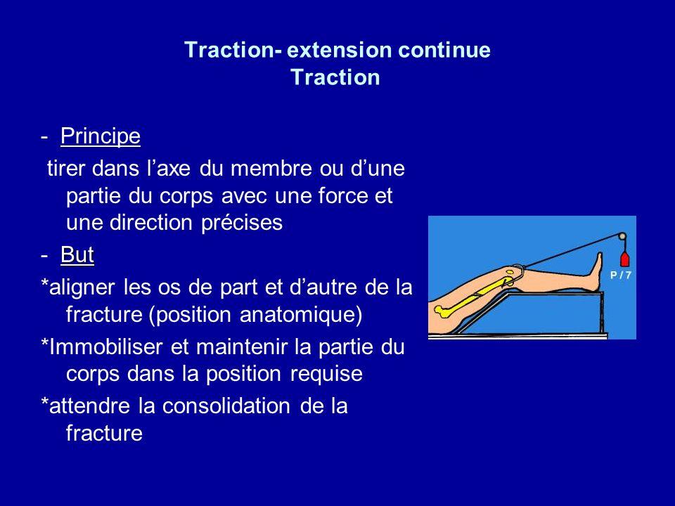 Traction- extension continue 1.1.Traction : définition Force appliquée sur une partie du corps dans 2 directions opposées : traction – contre traction