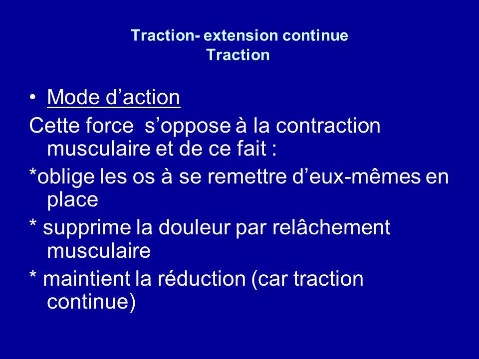 Traction- extension continue Traction - Principe tirer dans laxe du membre ou dune partie du corps avec une force et une direction précises But - But
