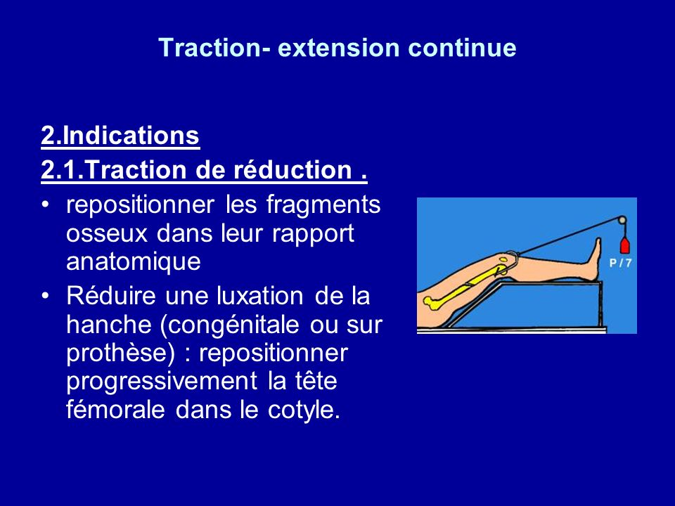 Traction- extension continue 2.Indications 2.1.Traction de réduction.