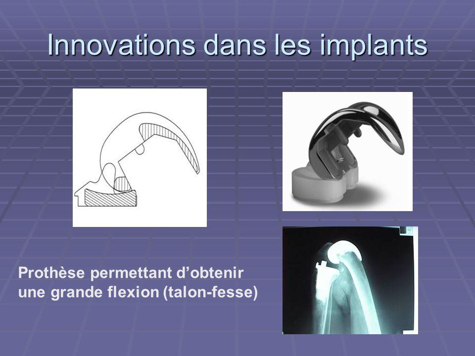 Innovations dans les implants Prothèse permettant dobtenir une grande flexion (talon-fesse)
