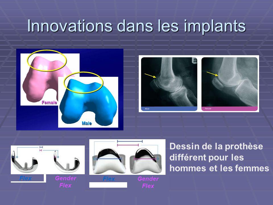 Innovations dans les implants Gender Flex Gender Flex Dessin de la prothèse différent pour les hommes et les femmes