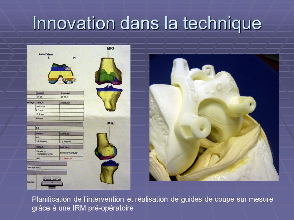 Innovation dans la technique Planification de lintervention et réalisation de guides de coupe sur mesure grâce à une IRM pré-opératoire