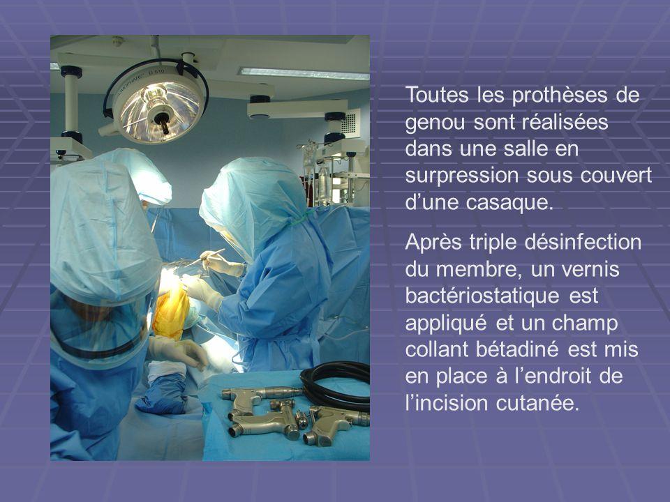 Toutes les prothèses de genou sont réalisées dans une salle en surpression sous couvert dune casaque. Après triple désinfection du membre, un vernis b