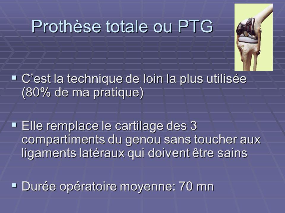 Prothèse totale ou PTG Cest la technique de loin la plus utilisée (80% de ma pratique) Cest la technique de loin la plus utilisée (80% de ma pratique)