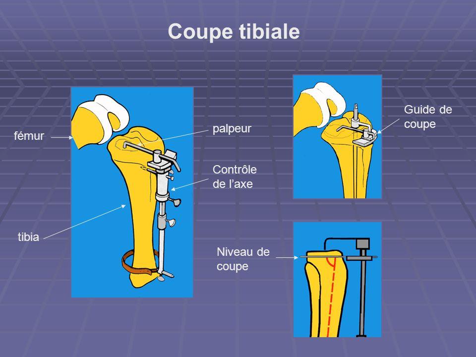 Coupe tibiale Niveau de coupe Guide de coupe Contrôle de laxe fémur tibia palpeur