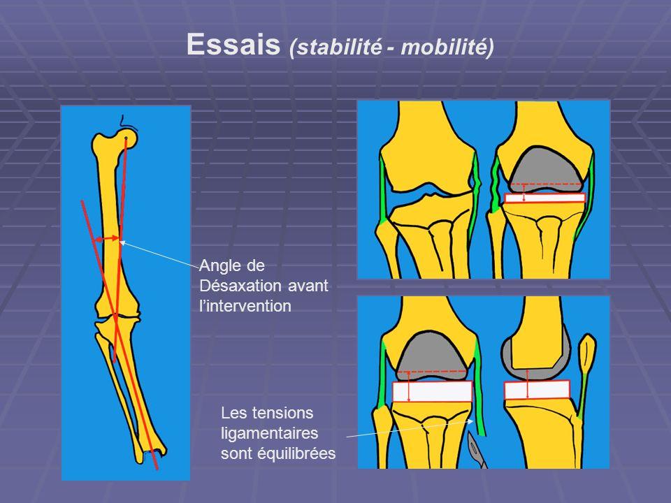 Essais (stabilité - mobilité) Angle de Désaxation avant lintervention Les tensions ligamentaires sont équilibrées