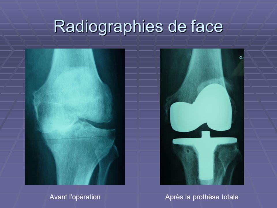 Radiographies de face Avant lopérationAprès la prothèse totale