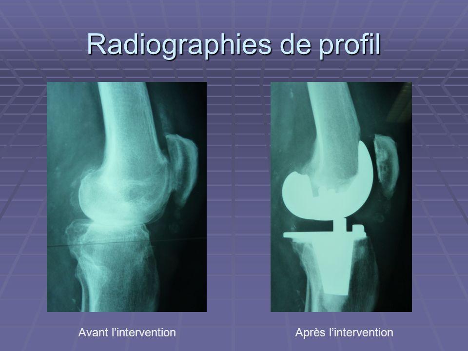 Radiographies de profil Avant linterventionAprès lintervention
