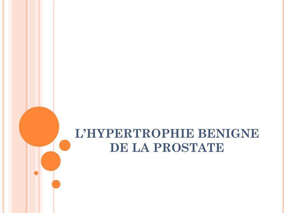 COMPLICATIONS de l HBP: -RAU : spontanée ou déclenchée (infections, médicaments…) -Infections : - non fébrile (cystites itératives /mauvaise vidange vésicale) - fébrile (prostatite aigue avec ou sans septicémie…) -Lithiase vésicale: de stase, svt infectée, => hématurie et majore la dysurie, +++ traitement chirurgical -Hématurie: (rupture de vaisseau dilaté de la muqueuse de lurètre) ==> exploration vésicale etrénale - Retentissement vésical et rénal: rétention chronique avec vessie acontractile (miction par regorgement) Insuffisance rénale chronique avec dilatation bilatérale des CPC