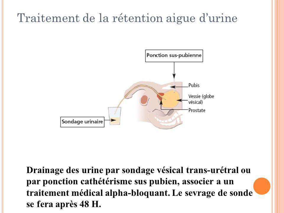 Traitement de la rétention aigue durine Drainage des urine par sondage vésical trans-urétral ou par ponction cathétérisme sus pubien, associer a un tr