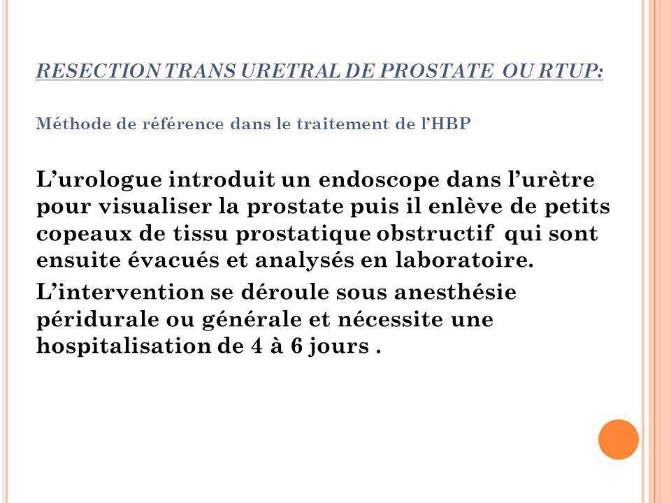 RESECTION TRANS URETRAL DE PROSTATE OU RTUP: Méthode de référence dans le traitement de lHBP Lurologue introduit un endoscope dans lurètre pour visual
