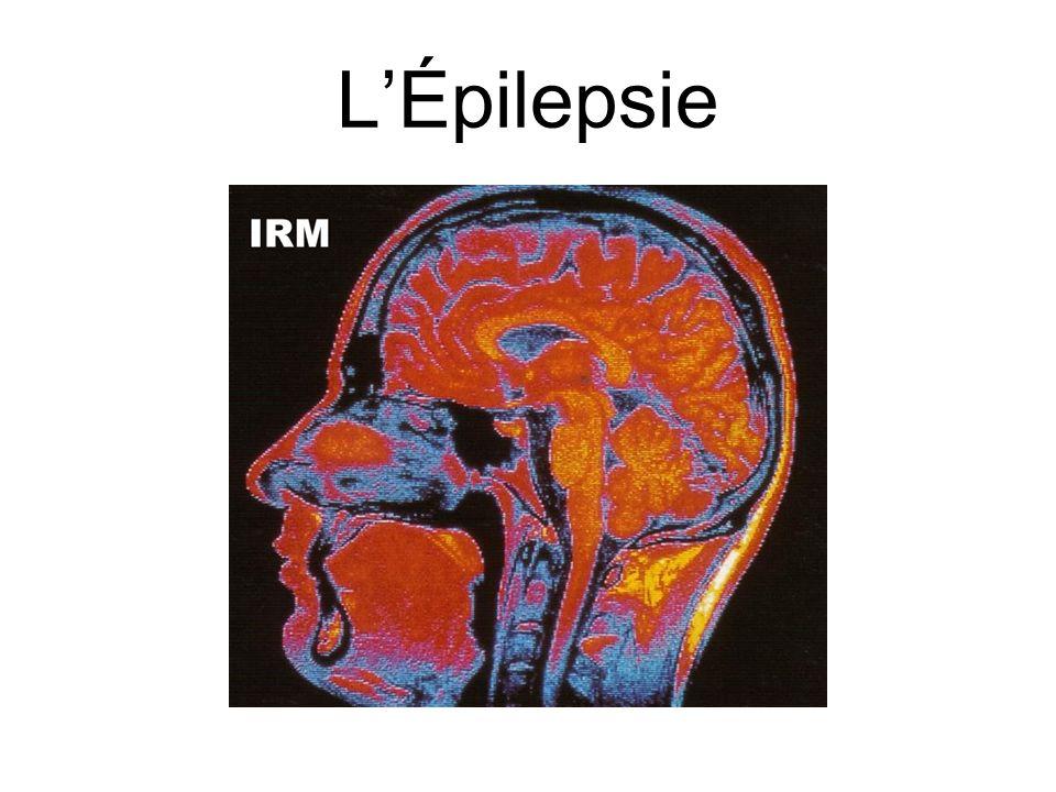 LÉpilepsie