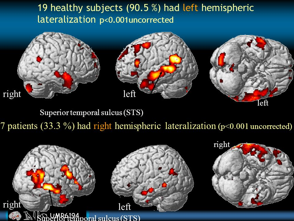 UMR6194 Language disorders (TLC, hallucinatory behavior), clinical and cognitive variables between patients with left and right hemispheric lateralization.