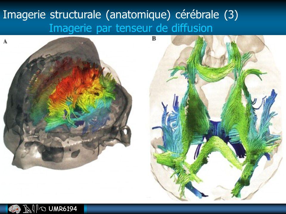 UMR6194 Imagerie par tenseur de diffusion Imagerie structurale (anatomique) cérébrale (3)