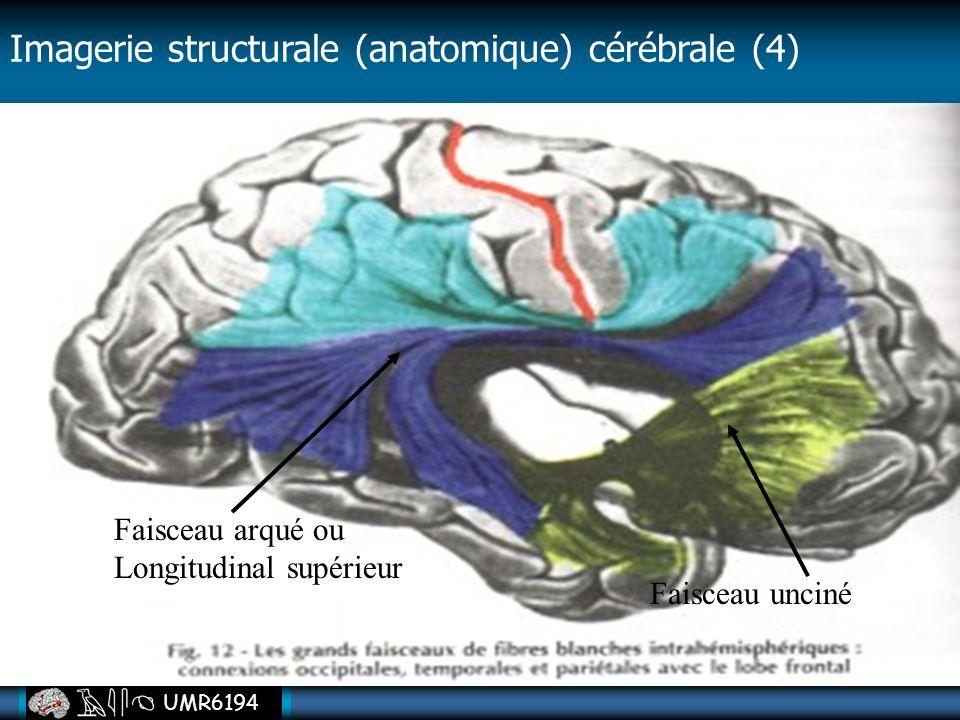 UMR6194 Faisceau arqué ou Longitudinal supérieur Faisceau unciné Imagerie structurale (anatomique) cérébrale (4)