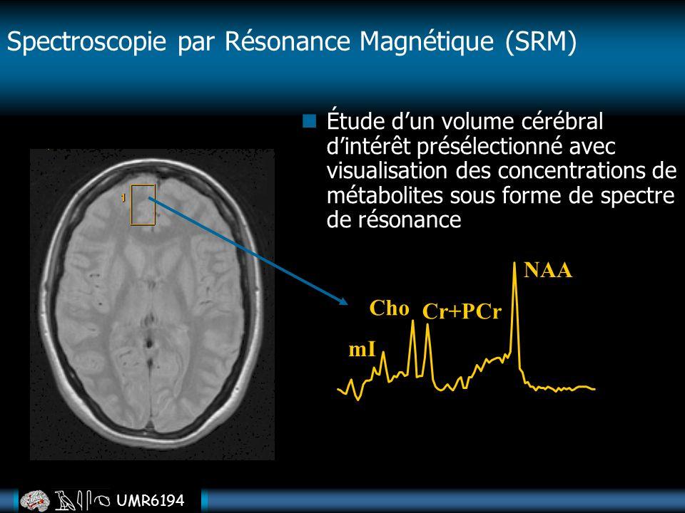 UMR6194 Étude dun volume cérébral dintérêt présélectionné avec visualisation des concentrations de métabolites sous forme de spectre de résonance Cho