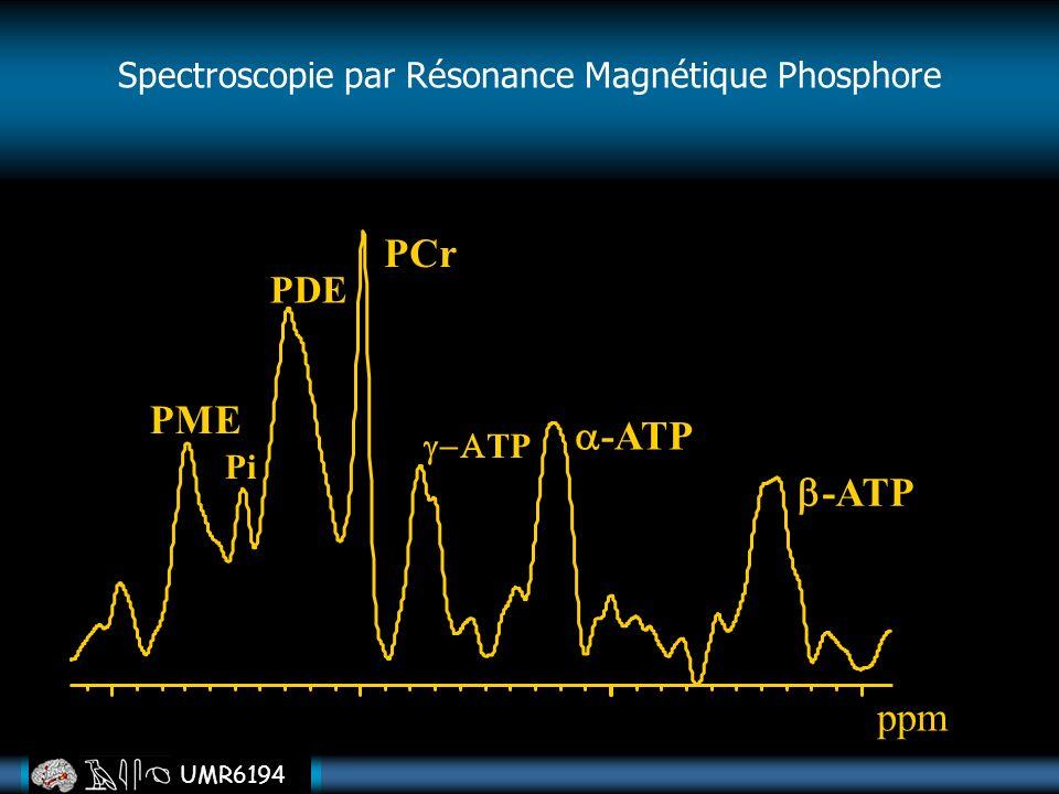 UMR6194 PME PDE Pi PCr TP -ATP ppm Spectroscopie par Résonance Magnétique Phosphore