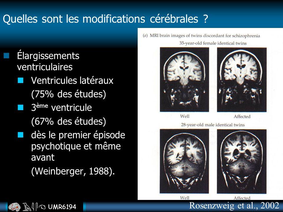 UMR6194 Quelles sont les modifications cérébrales ? Élargissements ventriculaires Ventricules latéraux (75% des études) 3 ème ventricule (67% des étud