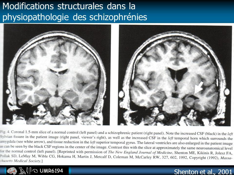 UMR6194 Shenton et al., 2001 Modifications structurales dans la physiopathologie des schizophrénies