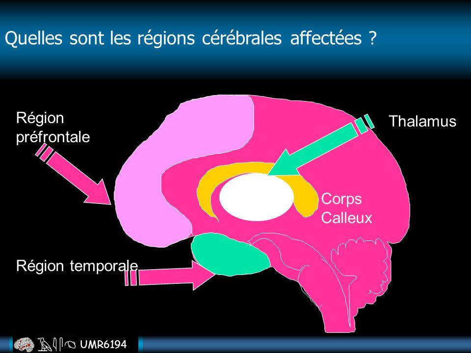 UMR6194 Région préfrontale Région temporale Corps Calleux Thalamus Quelles sont les régions cérébrales affectées ?