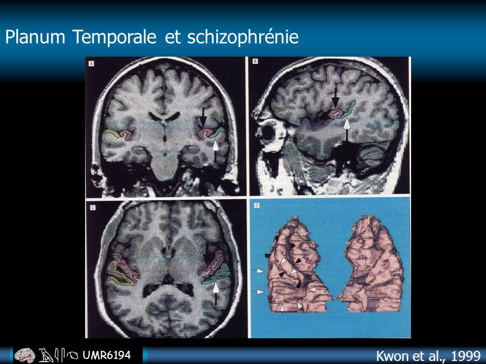 UMR6194 Kwon et al., 1999 Planum Temporale et schizophrénie