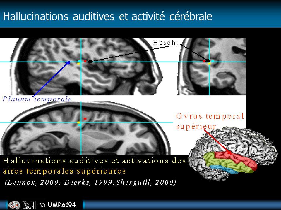 UMR6194 Hallucinations auditives et activité cérébrale