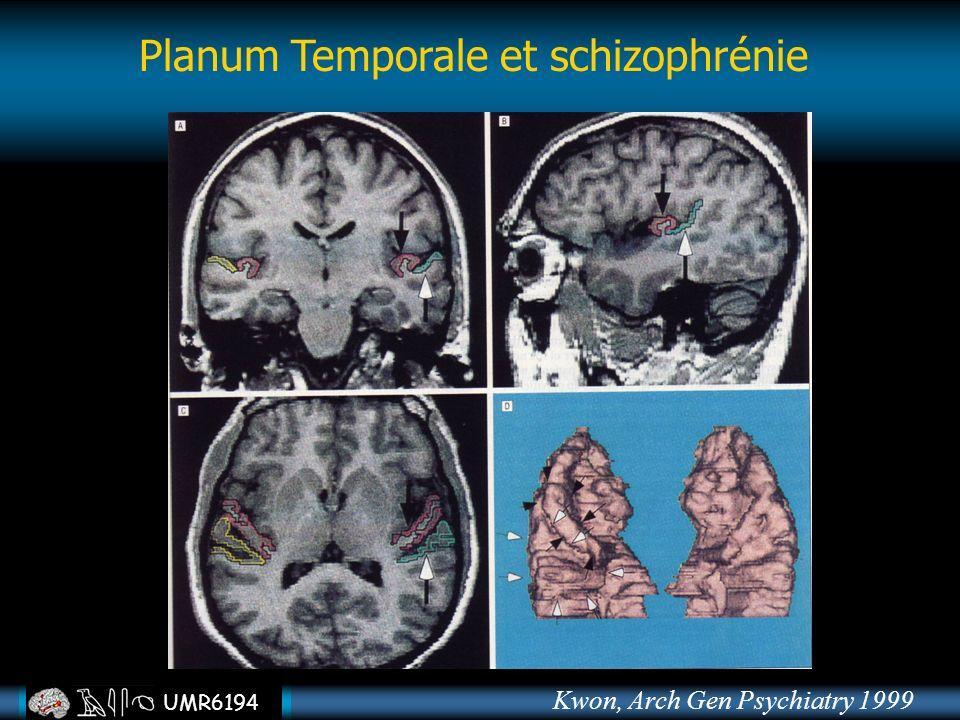 UMR6194 Planum Temporale et schizophrénie Kwon, Arch Gen Psychiatry 1999