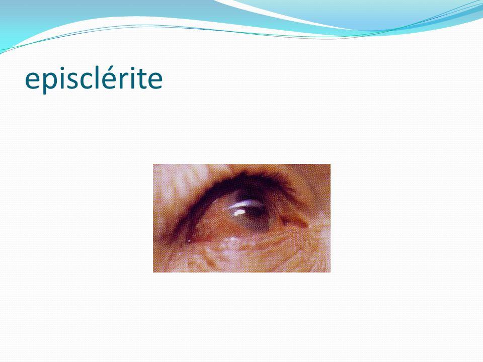 episclérite