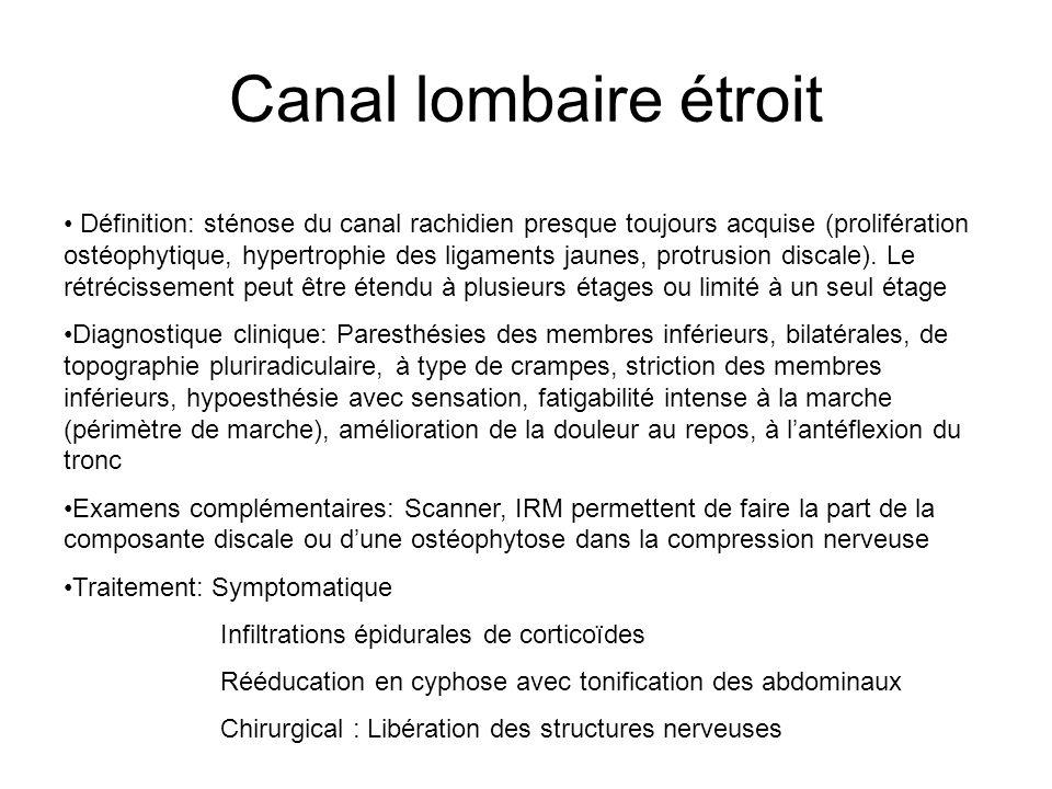 Canal lombaire étroit Définition: sténose du canal rachidien presque toujours acquise (prolifération ostéophytique, hypertrophie des ligaments jaunes,