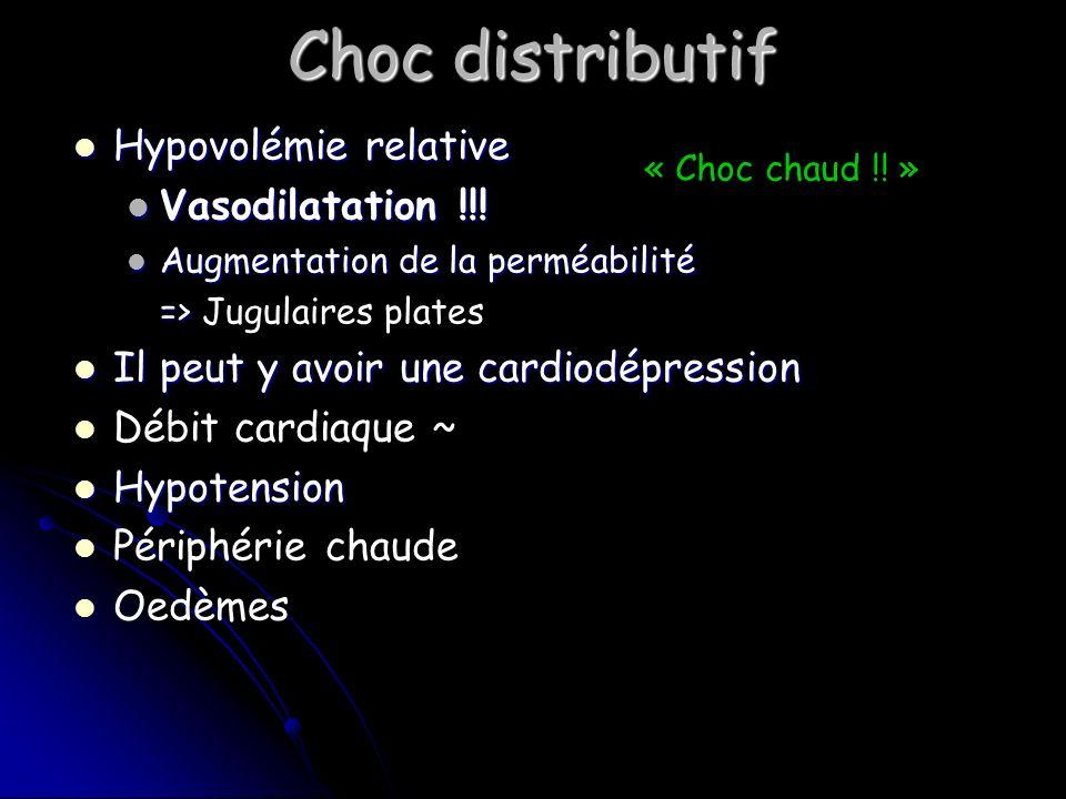 Choc distributif Hypovolémie relative Hypovolémie relative Vasodilatation !!.