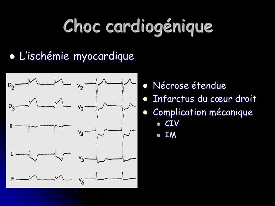 Choc cardiogénique Lischémie myocardique Lischémie myocardique Nécrose étendue Nécrose étendue Infarctus du cœur droit Infarctus du cœur droit Complication mécanique Complication mécanique CIV IM