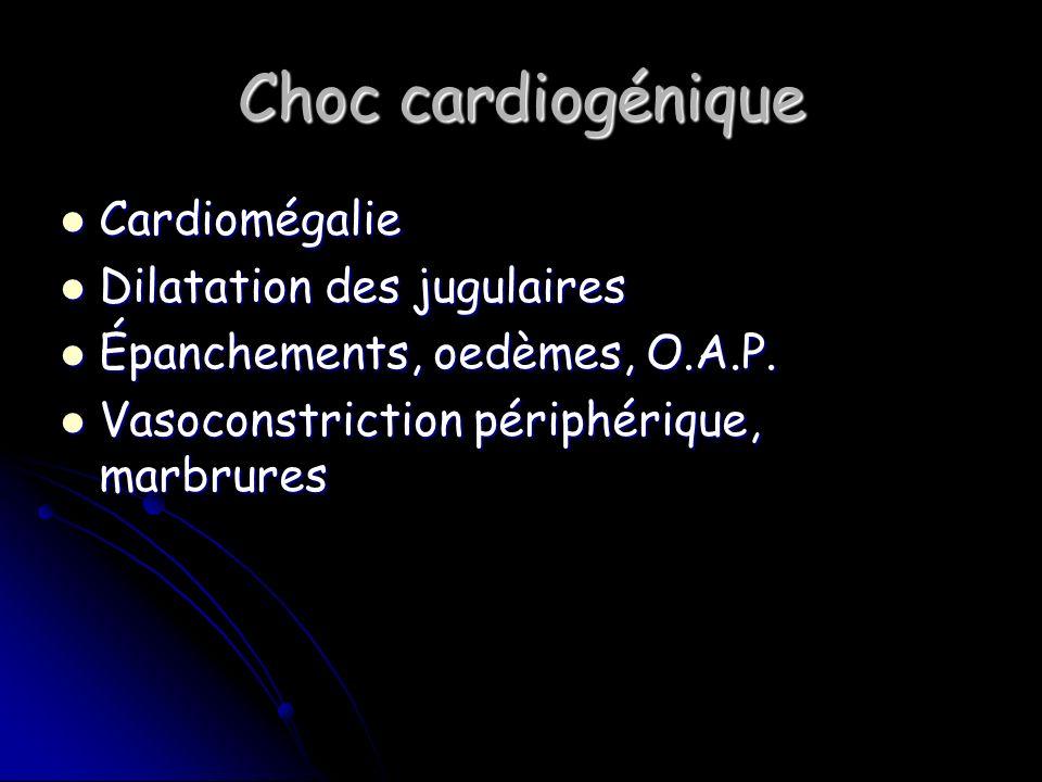 Choc cardiogénique Cardiomégalie Cardiomégalie Dilatation des jugulaires Dilatation des jugulaires Épanchements, oedèmes, O.A.P.